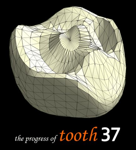 tooth 37