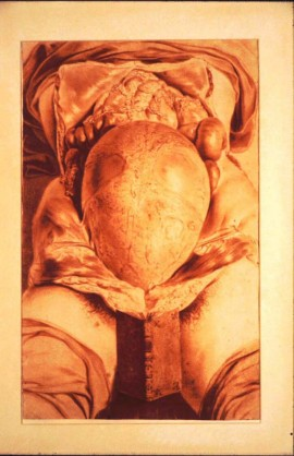 Gravid Uterus William Hunter (1764)