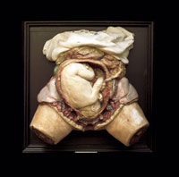 Hunter's 18th century plaster and lead cast of the gravid uterus